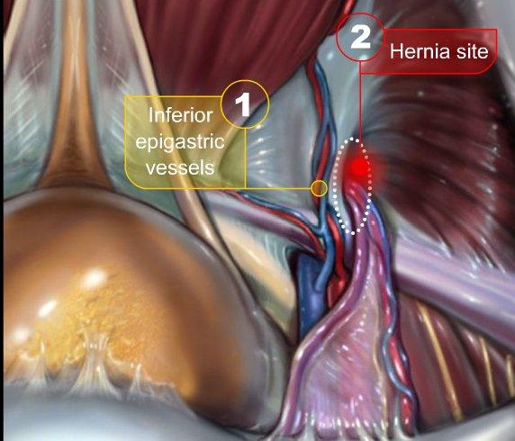 Operatieverslag Correctie Hernia Inguinalis Liesbreuk