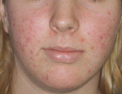 vormen van acne