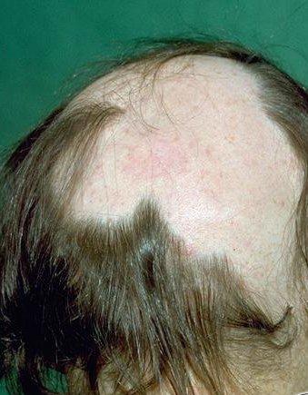 pijnlijke hoofdhuid haaruitval