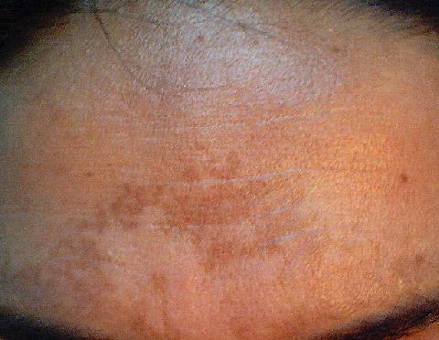 Die schwefelhaltige Salbe otbeliwajet die Haut