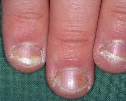 nagels psoriasis