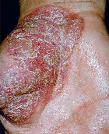 schimmelinfectie afscheiding