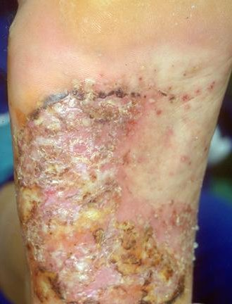 Alle informatie over psoriasis - Psoriasis.nl