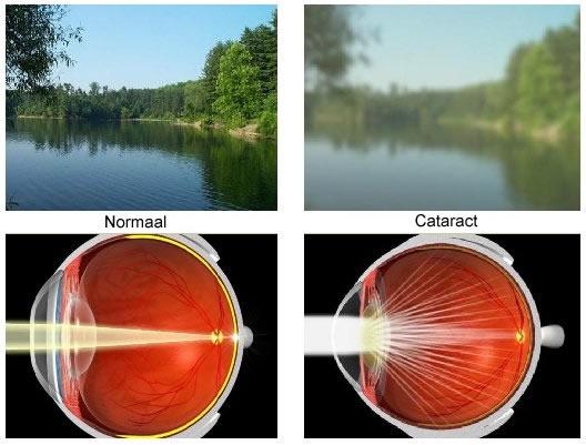 Cataract (Bron: www.cataractinstitute.net)