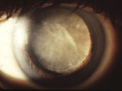 Cataract (Bron: www.cuhk.edu.hk)